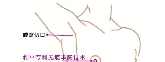 宁波和平博悦假体隆胸切口位置