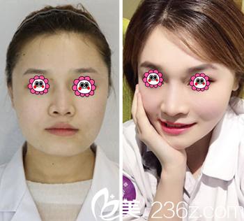 北京惠合嘉美医院自体脂肪面部填充案例