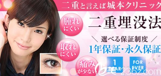 日本城本整形医院埋线双眼皮等整形项目年终优惠价格大公开