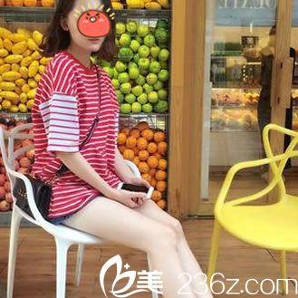 面对粗壮的大腿别无它法,我就到台州悠美丽思整形医院找池再刚做了大腿吸脂手术
