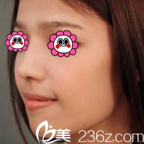 我看了北京惠合嘉美胡俊峰隆鼻案例后就做了膨体耳软骨鼻综合