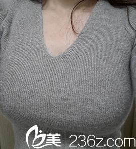 我在北京惠合嘉美假体隆胸经历告诉你曼托假体隆胸多久可以变软
