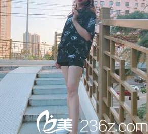 自从我在北京惠合嘉美做水动力腿部吸脂后也拥有了大美腿