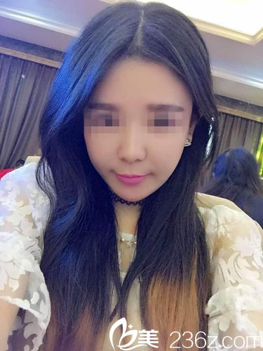 术前面部松弛+双下巴的美女找武汉乐美汪文娟院长做了埋线提升后法令纹也都消失了