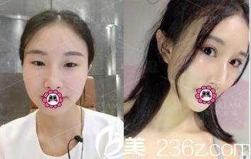 北京薇琳董香君医生眼综合案例