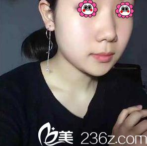 好友在北京伊美康做手臂吸脂效果不错价格优惠推荐我做面部吸脂
