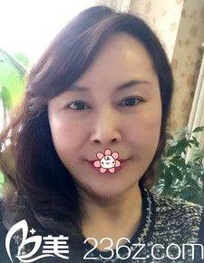 年近50,可我天生爱美爱打扮就让重庆军美整形美容医院胡金香在我脸上做了蛋白线埋线提升!