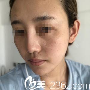 吉林国健医疗美容医院朴景远术前照片1