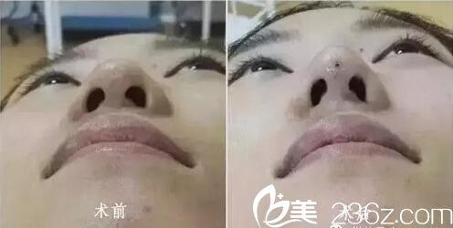 泸州美天美整形医院线雕隆鼻术后对比效果