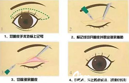 长春做双眼皮修复价格贵吗?长春红星修复双眼皮10800元还你靓丽美眼
