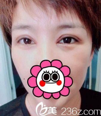 45岁阿姨选择在吉林丰满赵钢做完眼综合手术后看上去年轻了5岁不止