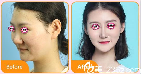 北京艺星整形隆鼻多少钱?BSK宫廷鼻综合隆鼻价格表和案例抢先看