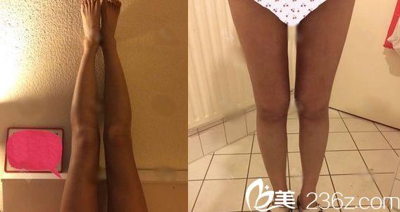 在义乌张小红医疗美容医院董孟松处做大腿吸脂短短2个月,我的大腿围竞瘦了10cm,太开心啦!