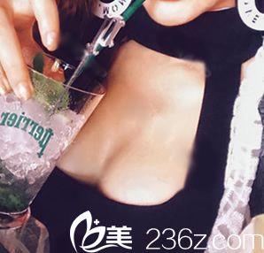 没想到在宁波美莱陈富旺这儿做假体隆胸3个月,胸部已经软得不行了,跟真的一样一样的