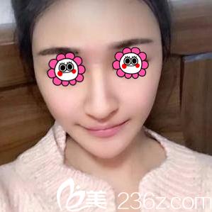 北京艺星薛轶群面部吸脂案例和抽吸脂优惠价目表分享