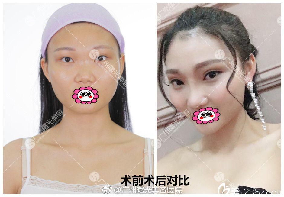 广州曙光医院范丹双眼皮效果图