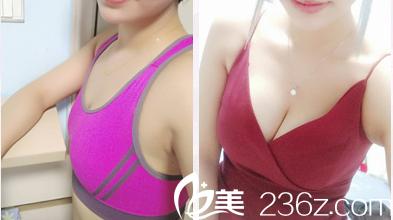 广州南珠整形陈伯华做的隆胸案例