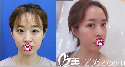 北京艺星全切双眼皮一般多少钱?眼整形优惠价格表和案例来参考