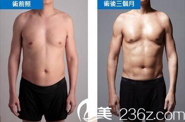 威塑4D脂肪雕刻技术手术前后对比照片