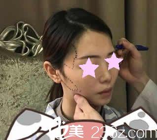 南宁东方整形医生给我做自体脂肪填充全脸术前设计
