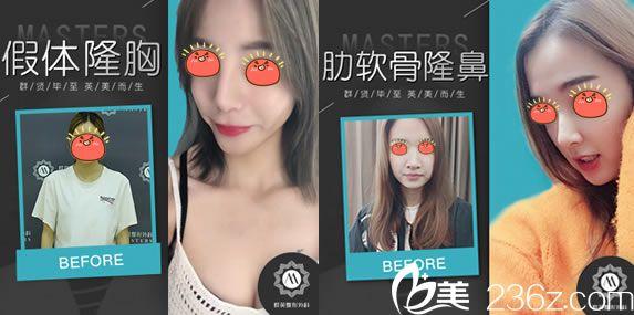 网红选择杭州群英做隆胸隆鼻案例