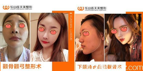 网红选择杭州华山连天美做下颌角颧骨案例