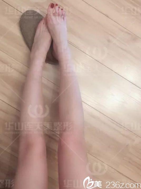 我没受过抽脂吸脂那种痛,通过杭州华山连天美瘦腿针轻松达到瘦小腿的目的啦!