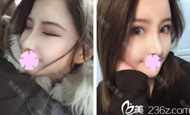 在南宁韩成整形把双眼皮、隆鼻和瘦脸针一起做了,术后竟然美成这样