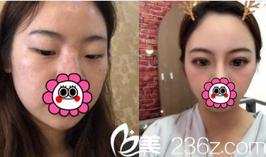 北京艺星王博谦双眼皮案例