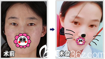 北京丽都于晓春双眼皮案例