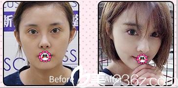 北京新星靓双眼皮修复案例