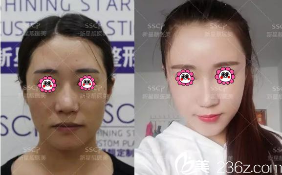 北京新星靓面部自体脂肪填充案例