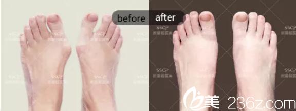 北京新星靓大脚骨治疗案例