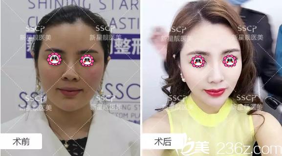 北京新星靓热拉提美肤案例