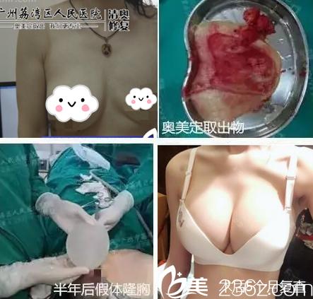 公开我在广州荔湾区人民找邓正军做胸部奥美定取出和假体植入的亲身经历和感受