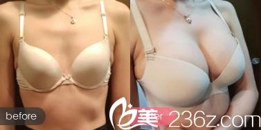 北京新星靓张立彬自体脂肪丰胸多少钱?点对点美沟艺术翘胸46800元起