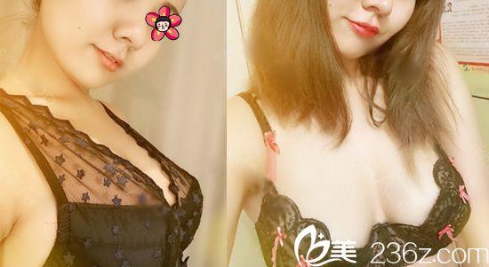 在曼托毛面圆形和水滴型乳房假体之间,我选择温州yestar艺星谭立文做了毛面圆形250cc假体隆胸