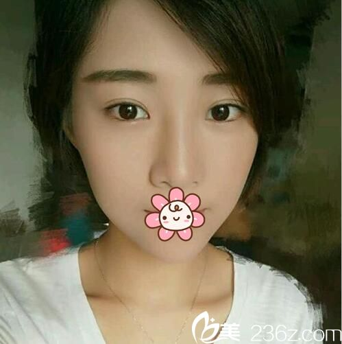 成都美极找刘洁双眼皮修复案例:从睡不醒妈妈到辣妈的蜕变