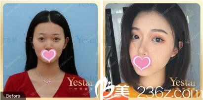 上海艺星医疗美容医院郑皓均埋线双眼皮真人案例