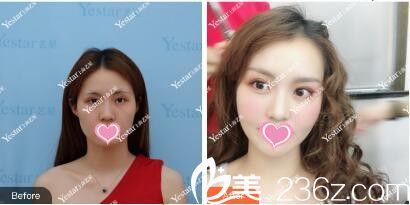 上海艺星医疗美容医院郑皓均全切双眼皮真人案例