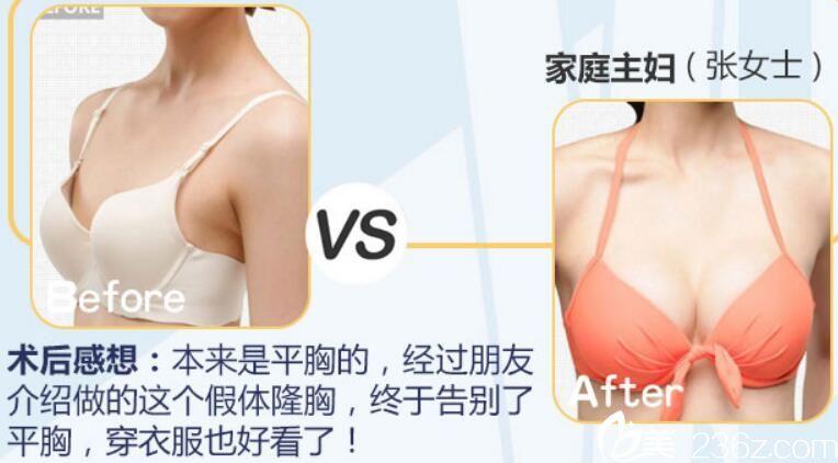 阜阳东方美莱坞整形假体隆胸术前术后对比案例