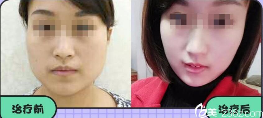阜阳美莱坞瘦脸针案例前后效果对比照片