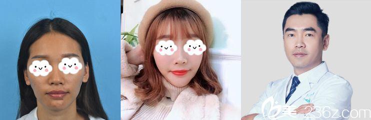 刘中国教授自体脂肪面部填充案例