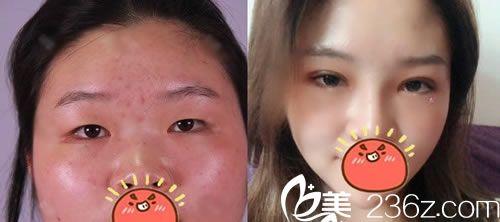 宁波113医院整形科金式伦双眼皮案例