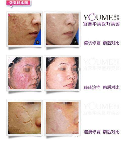 宜春华美镭射净肤,磨耐、除皱、祛疤,让肌肤静享年轻,在线预约只要1200