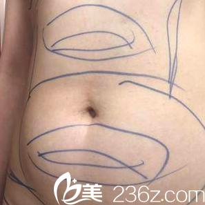 北京玲珑梵宫医疗美容医院黄海滨术前照片1