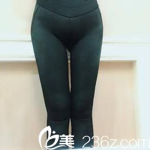 在北京玲珑梵宫做腰腹吸脂第16天样子