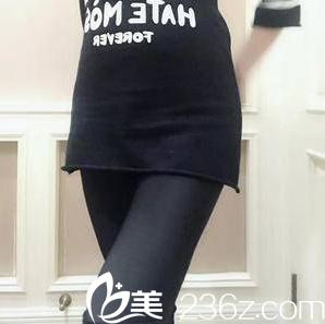 北京玲珑梵宫腰腹吸脂案例