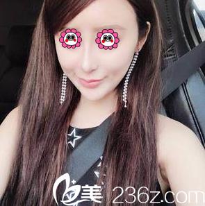 从苏婷给我做酒窝成形术效果来看北京百达丽医疗美容技术怎么样