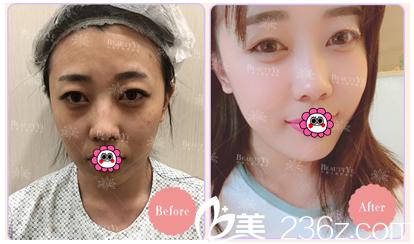 北京叶美人内切法祛眼袋让您重获灵动双眼,价格需2980元起